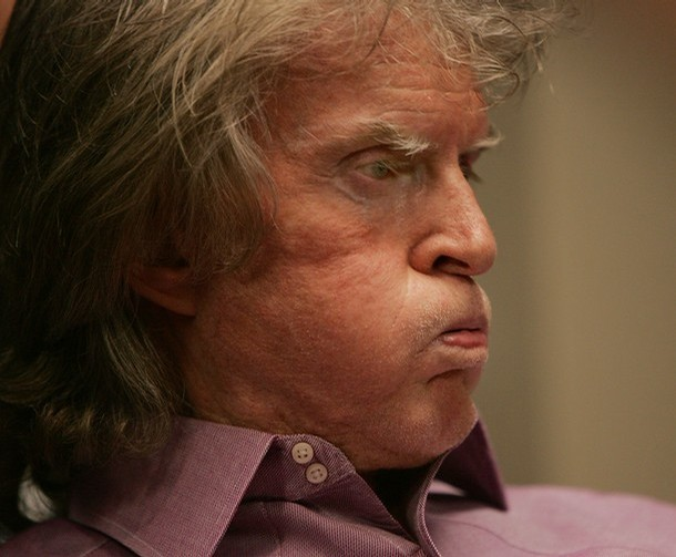 Don Imus: I've Got Cancer