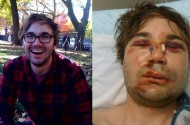 The Brutal Brooklyn Gay Bashing Of Barie Shortell