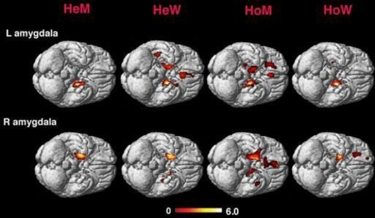 Gay Brains Reveal Straight Ways