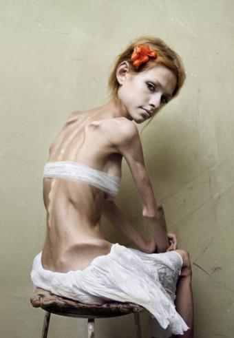 Anorexia Caused By … The Womb?