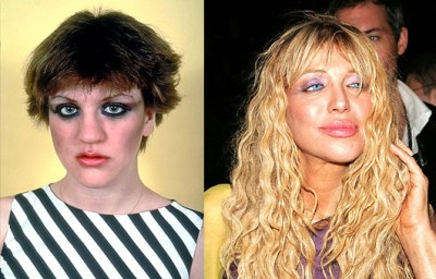 courtney-love-plastic-surgery