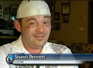 Shawn Bennett Said He Was Burned With a Lit Cig In Gay Bashing. He Was Lying