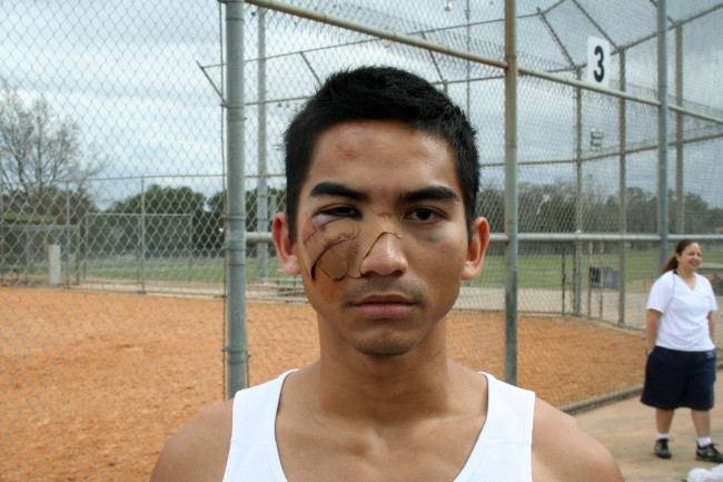 The 2 Austin Gay Softball Players Jumped By 4 Men in Early Morning Bashing