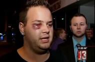 Vincent Webster's Black Eye: What Happens When You Spill Parmesan Cheese At a Pizza Shop