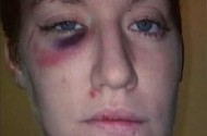 Lesbian Laura Gilbert Pummeled Outside Straight Bar In Alabama. But Police Only Arrested Her?